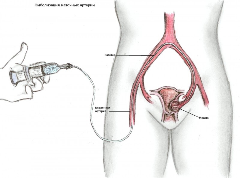 Снижен кровоток при беременности