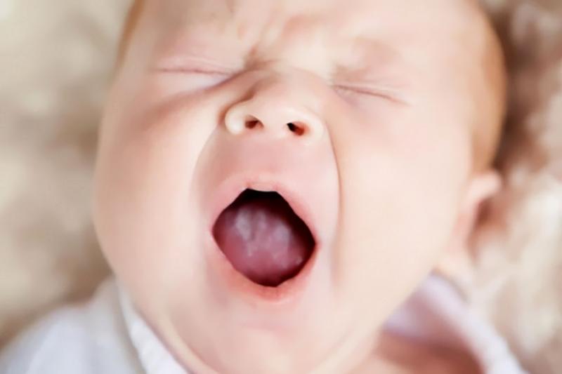 Проблема молочницы у новорожденных