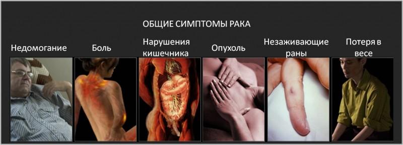 Общие симптомы рака