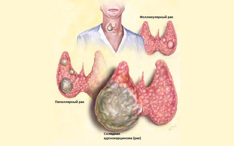 Виды злокачественных опухолей щитовидной железы