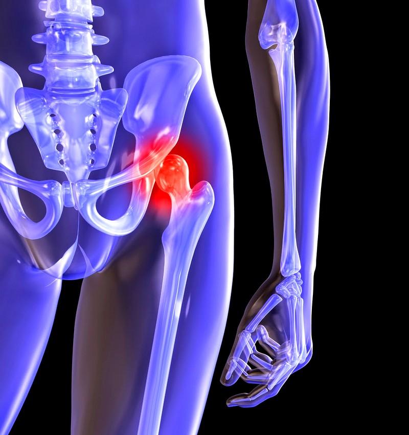Остеоартроз (коксартроз) тазобедренного сустава