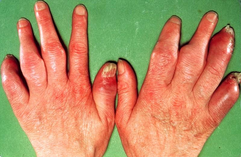 psoriaticheskiy-artrit-i-psoriaz