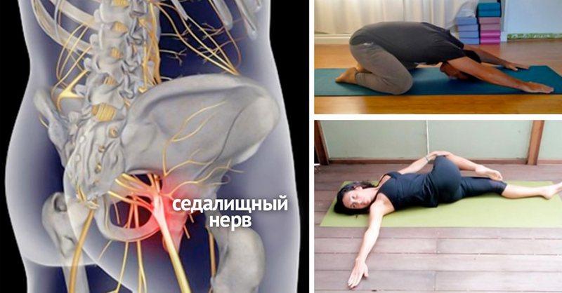 Терапия физкультурой должно быть индивидуальной для каждого больного.