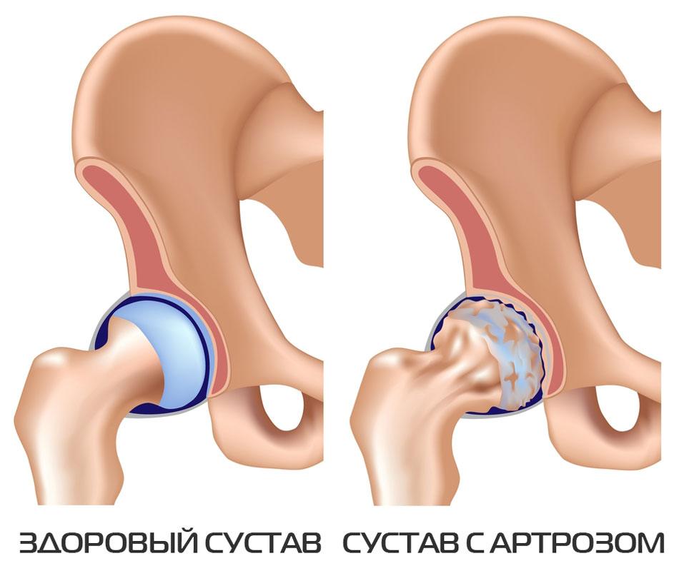 Артрит тазобедренного сустава симптомы и лечение как лечить дома