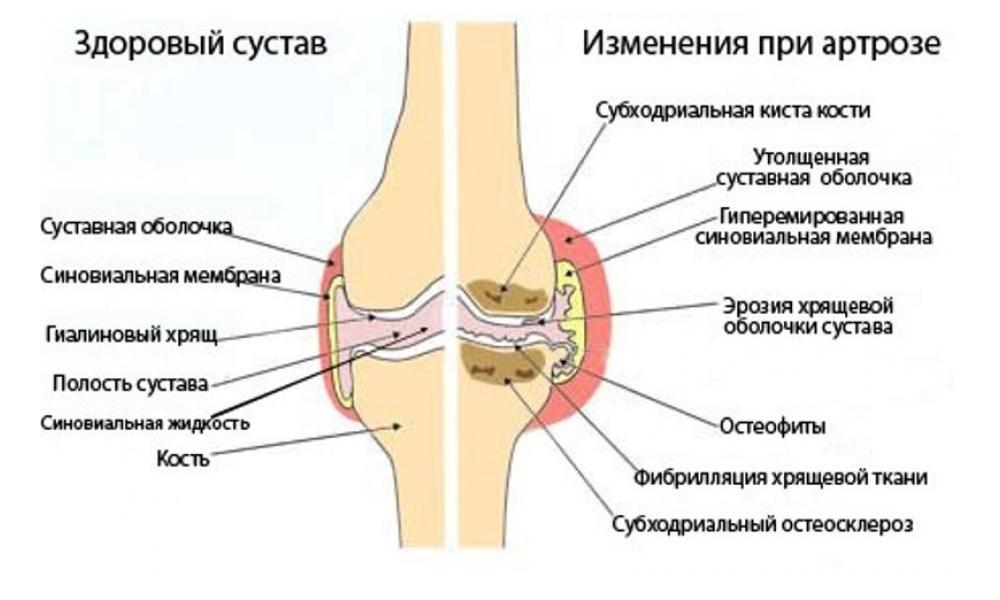Как и чем лечить артроз плечевого сустава
