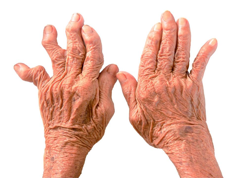 ревматизм кисти рук