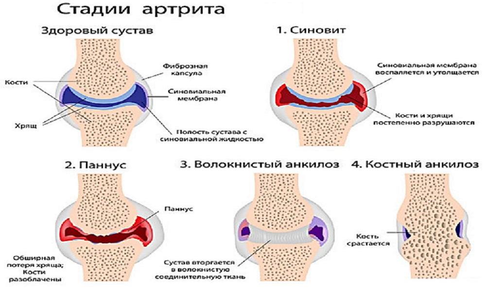 полиартрита суставов