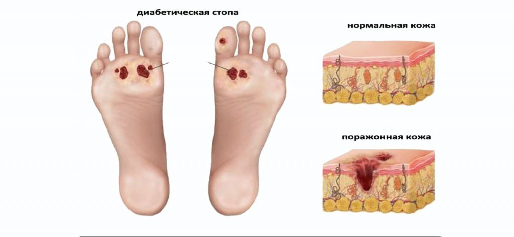 участки сухой кожи на стопах диагноз лечение Недвижимость