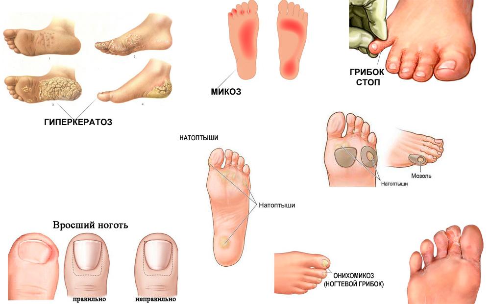 Грибок ногтей как лечить в домашних условиях