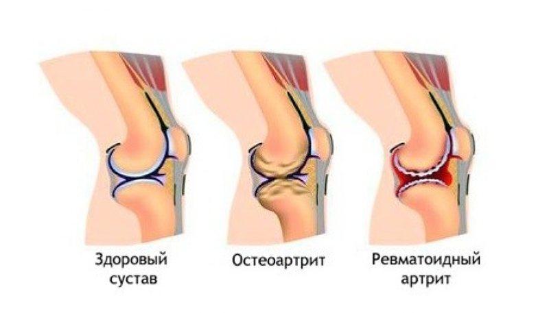 Поражение тканей при ревматоидном артрите