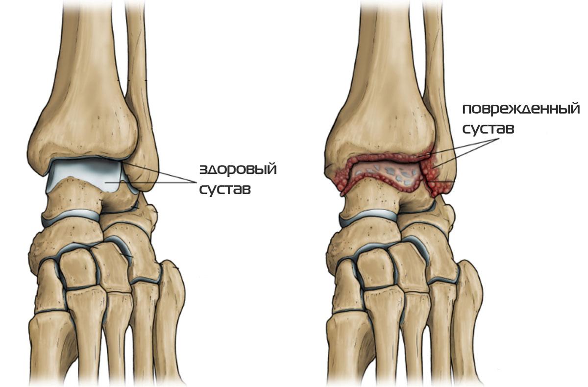 Артроз голеностопного сустава: симптомы патологии и лечение
