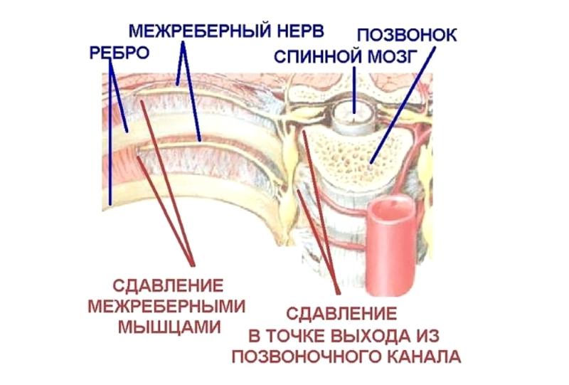 Межреберная невралгия грудного отдела