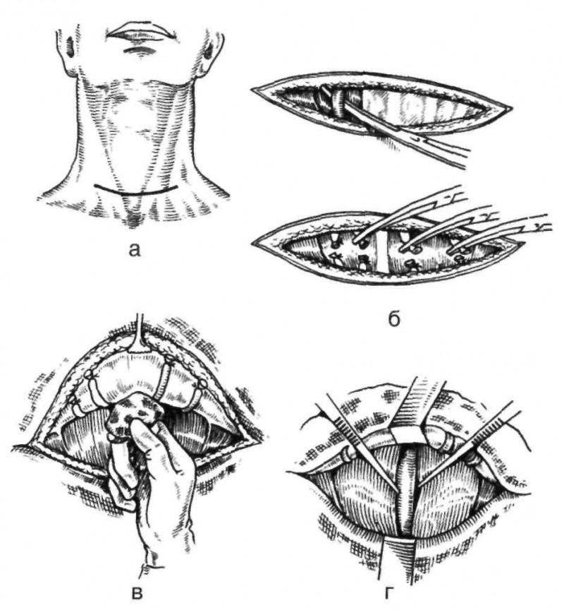 Этапы удаления щитовидной железы