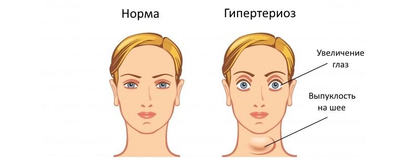 Проявления увеличения щитовидной железы