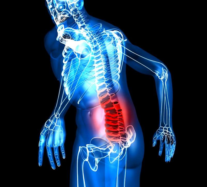 Симптоматическая картина грыжи позвоночника