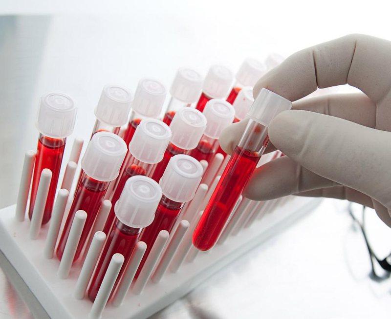 Рекомендовано сделать биохимию крови
