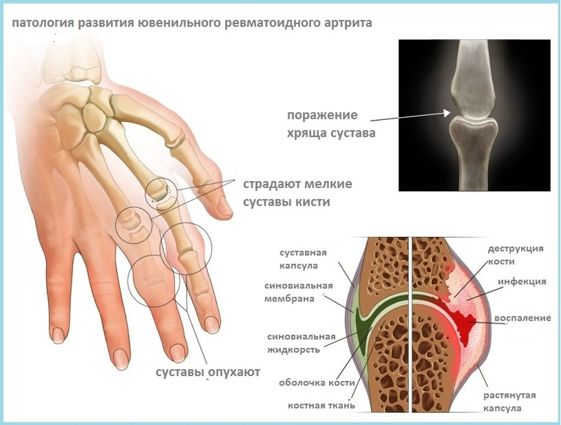 rhmatoid arthritis Learn all about rheumatoid arthritis with our guide to symptoms, causes, diagnosis and treatments.