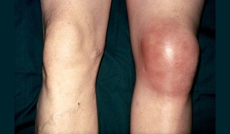 Выраженные симптомы бурсита коленного сустава