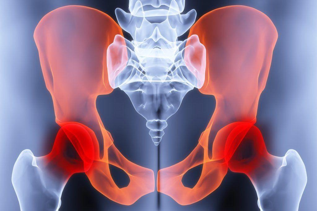 Болезнь тазобедренного сустава