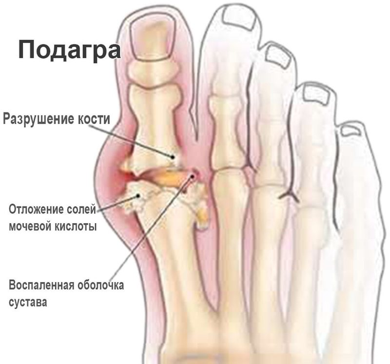 При подагрическом артрите поражается обычно большой палец ноги
