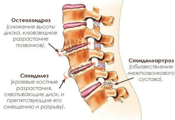 Остеохондроз и шейный спондилез - заболевания шейного отдела позвоночника