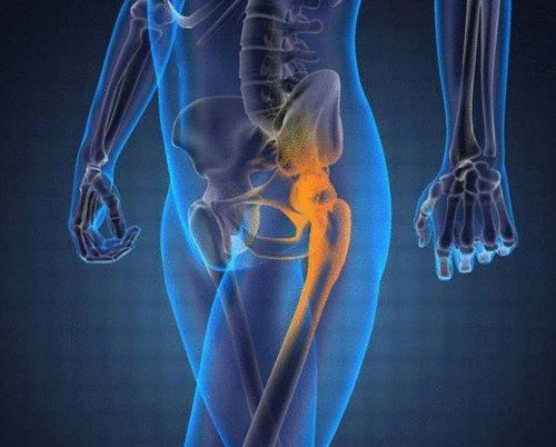 Коксартроз тазобедренного сустава: симптомы и лечение