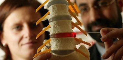 Лечение межпозвоночной грыжи пояснично крестцового отдела без операции